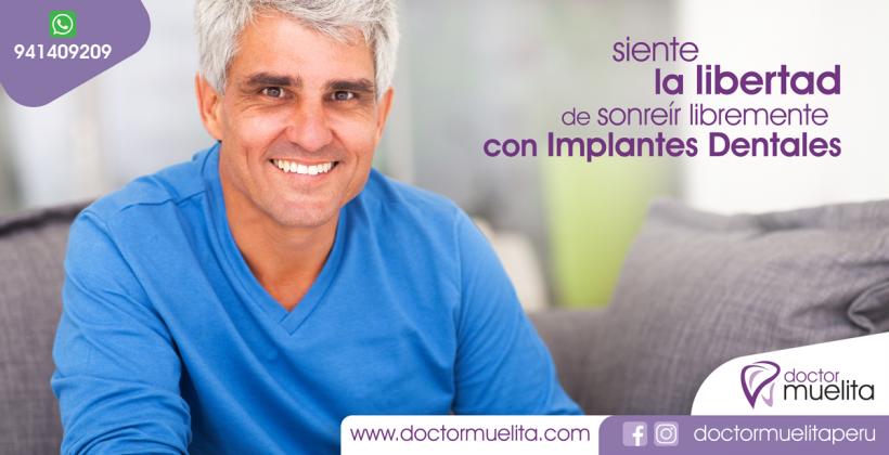 Implantes Dentales , Mitos y Verdades , descubre cómo sonreír libremente