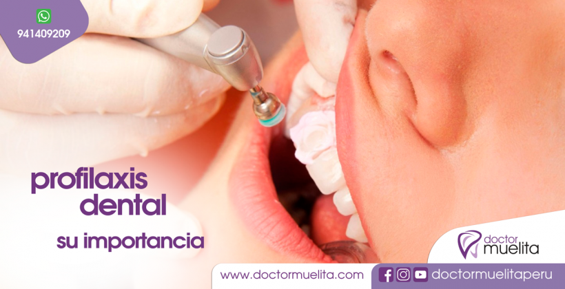 PROFILAXIS DENTAL, su importancia
