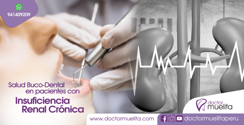 Salud BUCO-DENTAL en pacientes con INSUFICIENCIA RENAL CRÓNICA