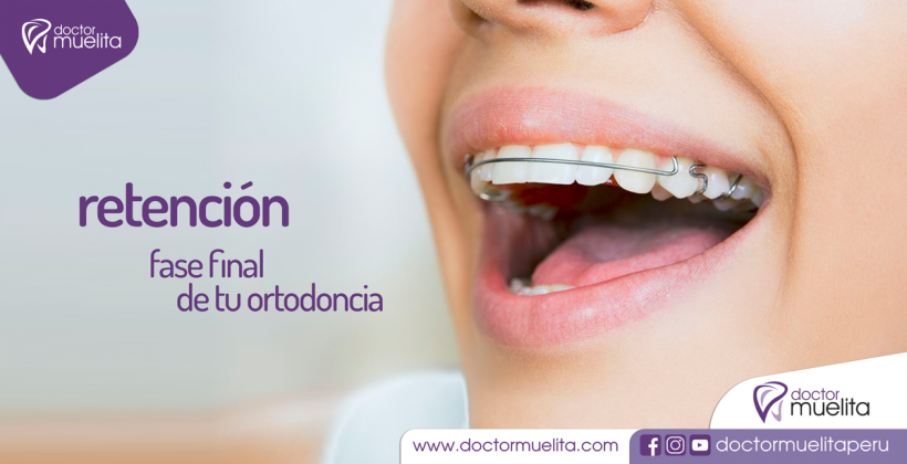 RETENCIÓN: Fase Final de tu Ortodoncia