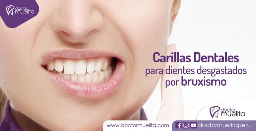 Carillas Dentales para dientes desgastados por Bruxismo