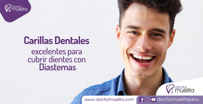 Carillas Dentales, excelentes para cubrir dientes con Diastemas