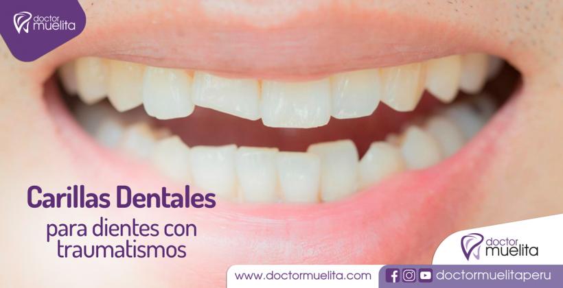 Carillas Dentales, ideales para solucionar dientes fracturados