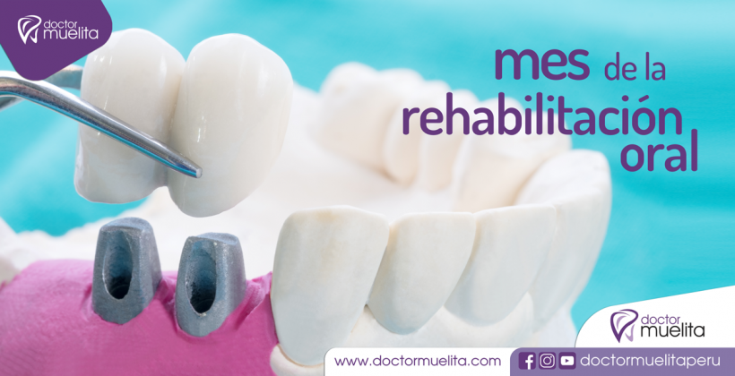 JULIO, Mes de la Rehabilitación Oral