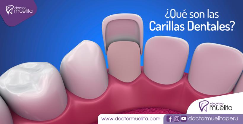 ¿Qué son las Carillas Dentales?