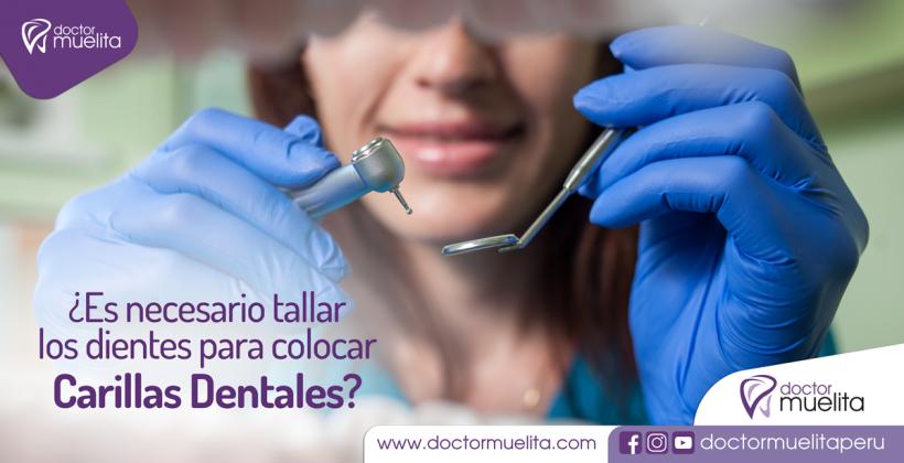 ¿Es necesario tallar los dientes para colocar las Carillas Dentales?