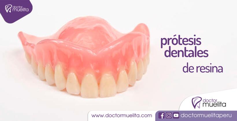 Prótesis Dentales de Resina