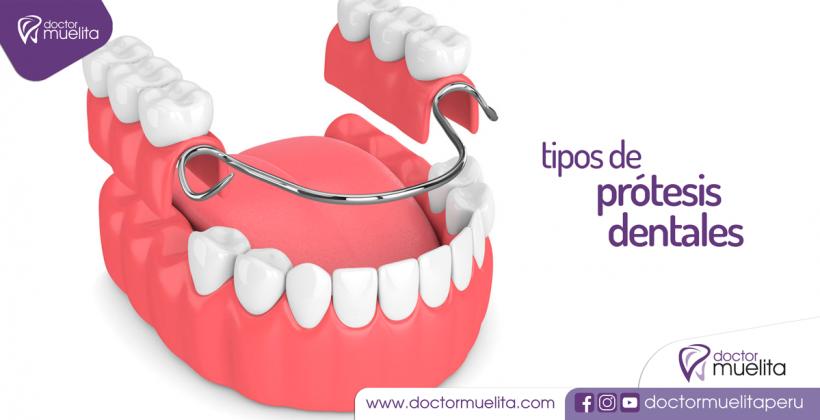 Conociendo los Tipos de Prótesis Dentales