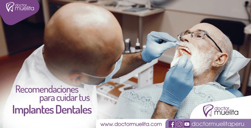 Recomendaciones para cuidar tus Implantes Dentales