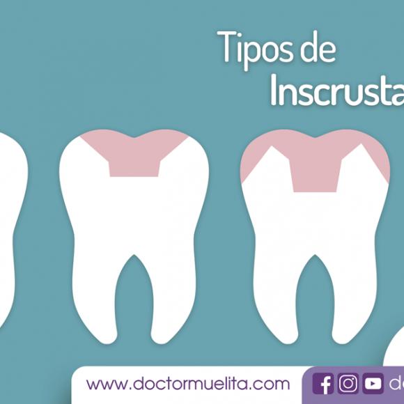 Tipos de Incrustaciones Dentales