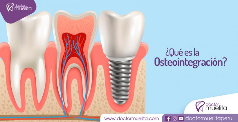 ¿Qué es la Osteointegración?