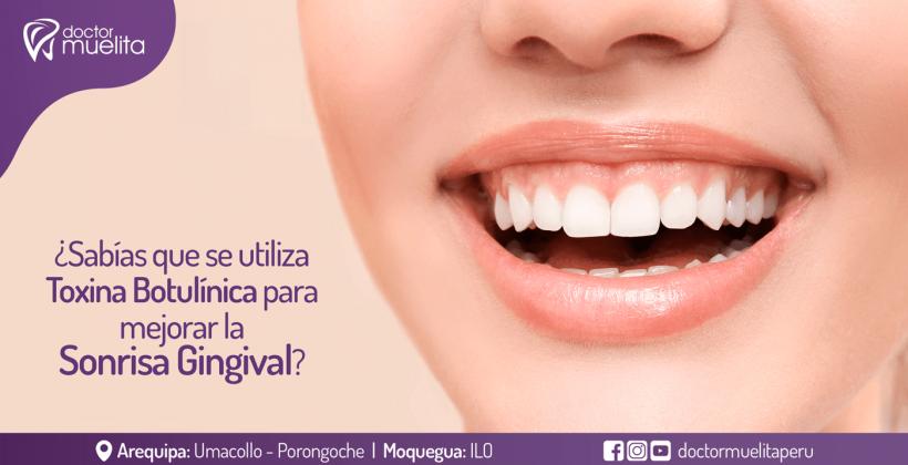 ¿Sabías que se utiliza Toxina Botulínica para mejorar la sonrisa gingival?