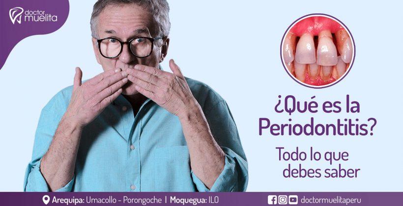 ¿Qué es la Periodontitis?, todo lo que debes saber