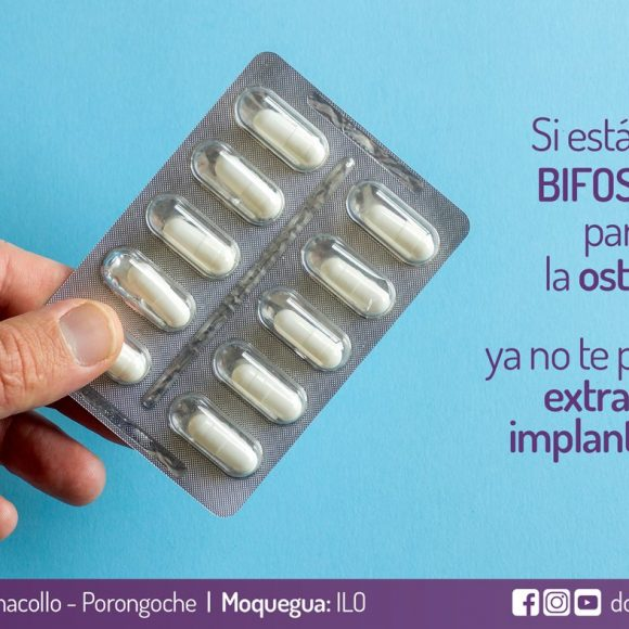Si estás usando bifosfonatos para combatir la osteoporosis, no te puedes realizar extracciones ni implantes dentales