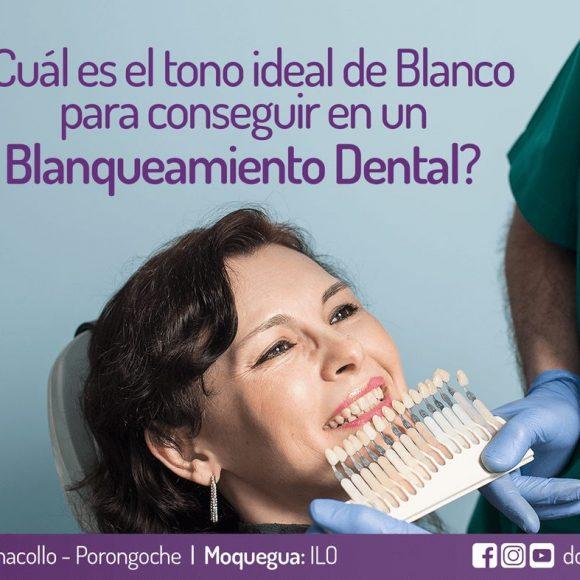 ¿Cuál es el tono ideal de Blanco para conseguir en un Blanqueamiento Dental?