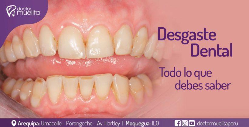 Desgaste Dental, todo lo que debes saber